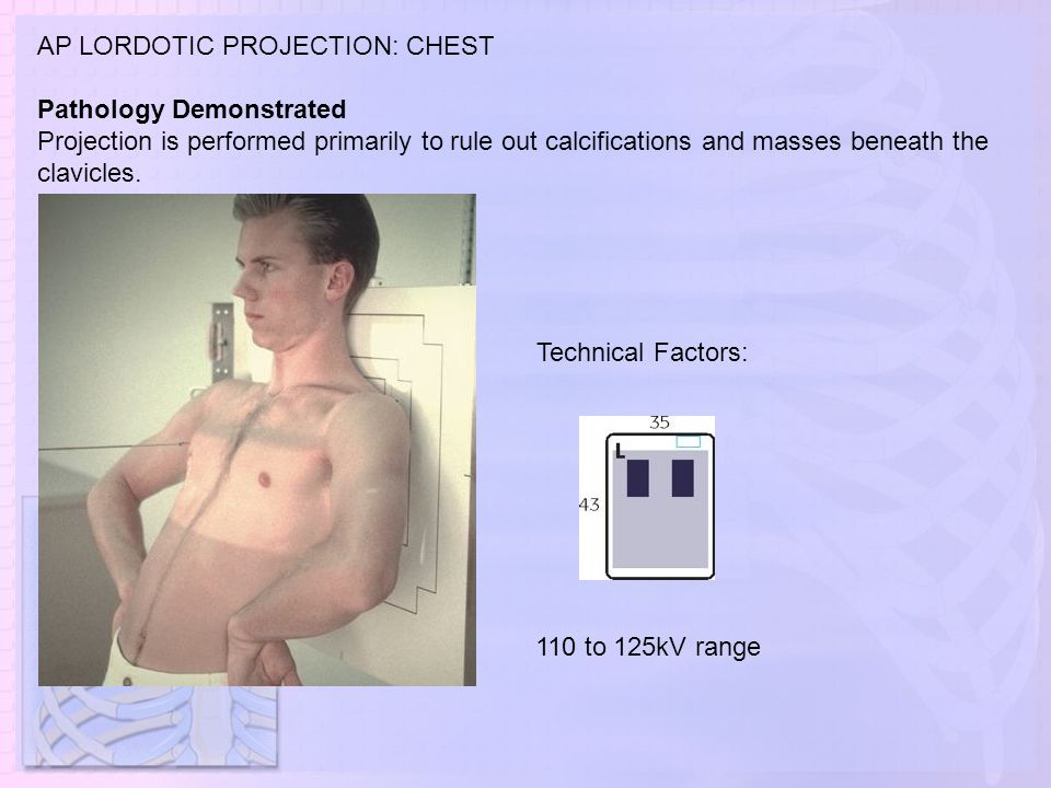 AP LORDOTIC PROJECTION: CHEST Pathology Demonstrated Projection is performed primarily to rule out calcifications and masses beneath the clavicles. 11