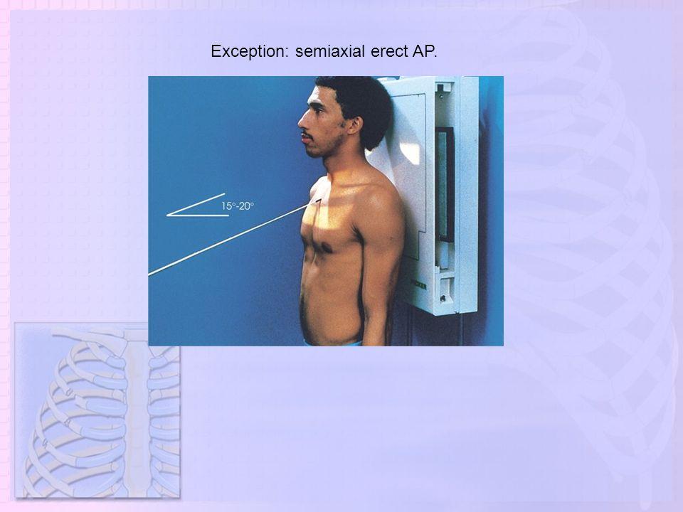 Exception: semiaxial erect AP.