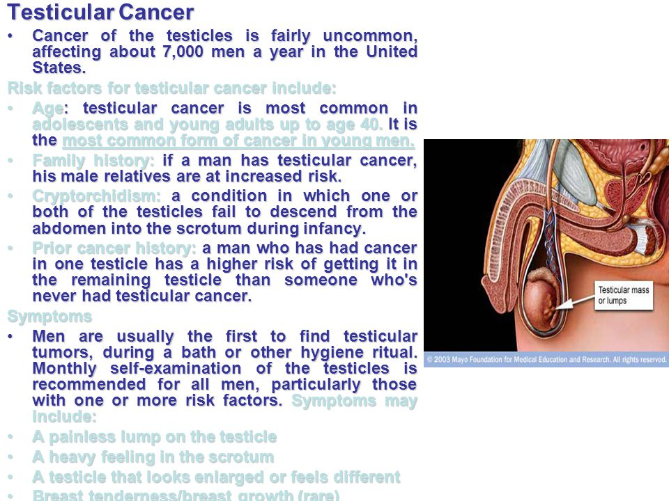 Testicular Cancer Cancer of the testicles is fairly uncommon, affecting about 7,000 men a year in the United States.Cancer of the testicles is fairly
