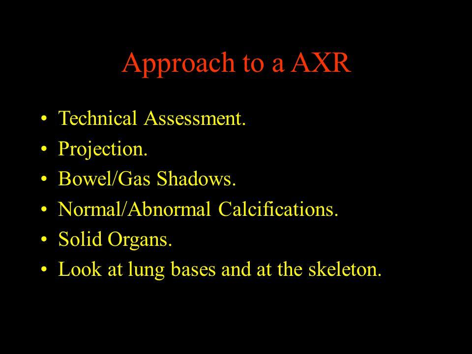 Normal Vs Abnormal Gas shadows Stomach.Colon. Small Bowel.