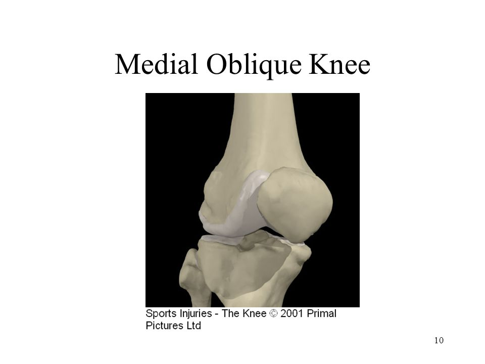 10 Medial Oblique Knee