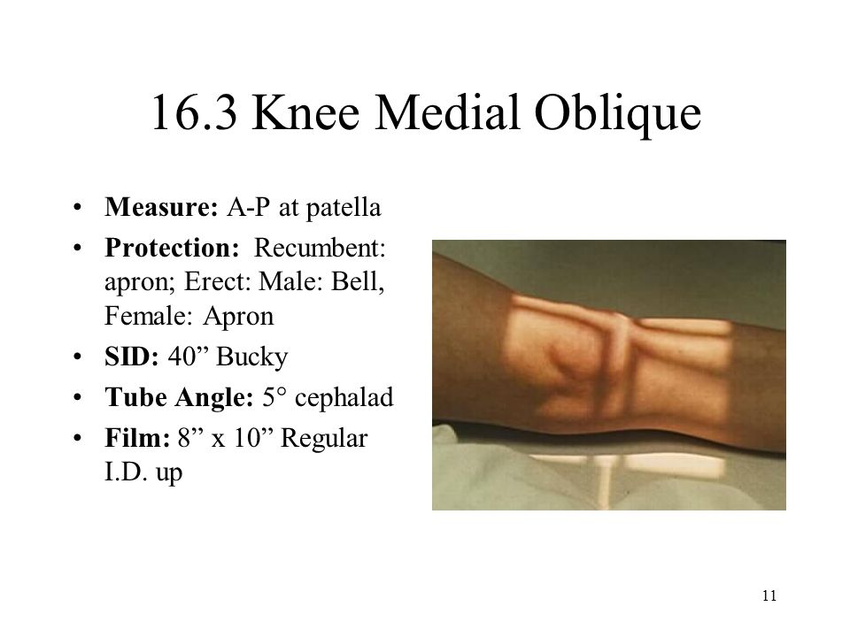 11 16.3 Knee Medial Oblique Measure: A-P at patella Protection: Recumbent: apron; Erect: Male: Bell, Female: Apron SID: 40 Bucky Tube Angle: 5° cephalad Film: 8 x 10 Regular I.D.