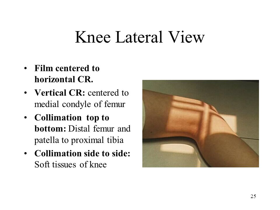 25 Knee Lateral View Film centered to horizontal CR. Vertical CR: centered to medial condyle of femur Collimation top to bottom: Distal femur and pate