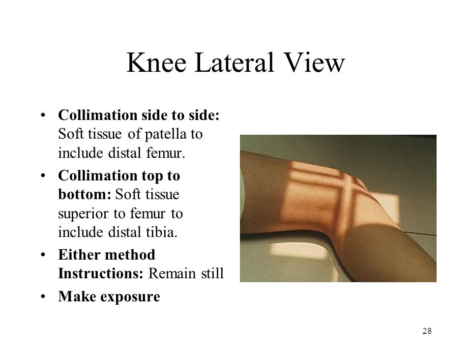 28 Knee Lateral View Collimation side to side: Soft tissue of patella to include distal femur. Collimation top to bottom: Soft tissue superior to femu