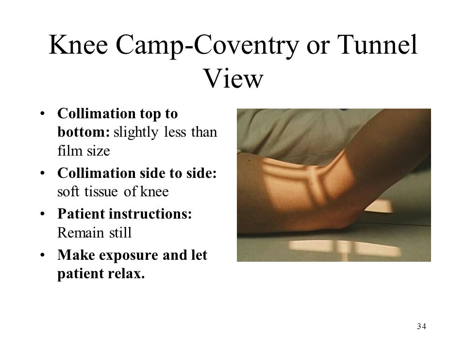 34 Knee Camp-Coventry or Tunnel View Collimation top to bottom: slightly less than film size Collimation side to side: soft tissue of knee Patient ins