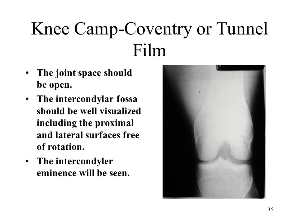 35 Knee Camp-Coventry or Tunnel Film The joint space should be open. The intercondylar fossa should be well visualized including the proximal and late