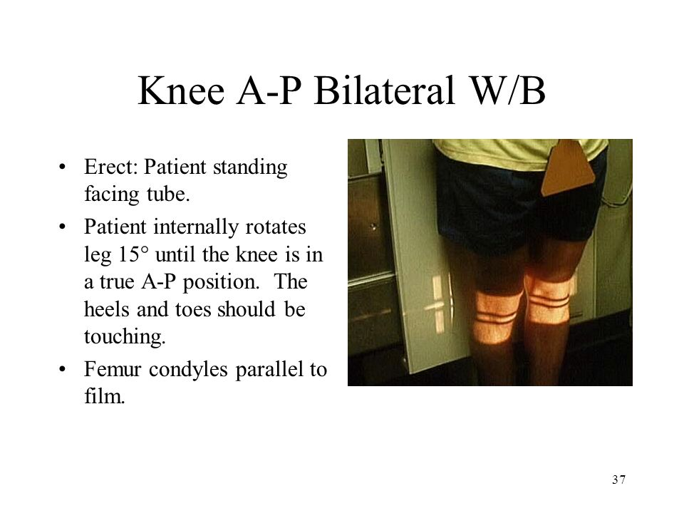37 Knee A-P Bilateral W/B Erect: Patient standing facing tube. Patient internally rotates leg 15° until the knee is in a true A-P position. The heels