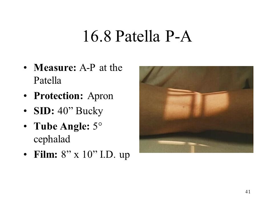 "41 16.8 Patella P-A Measure: A-P at the Patella Protection: Apron SID: 40"" Bucky Tube Angle: 5° cephalad Film: 8"" x 10"" I.D. up"