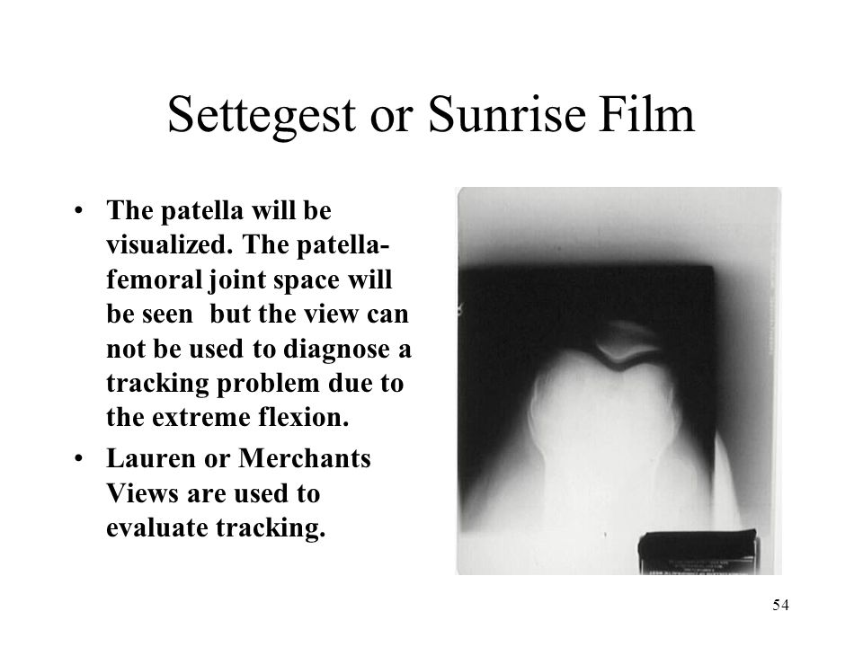 54 Settegest or Sunrise Film The patella will be visualized. The patella- femoral joint space will be seen but the view can not be used to diagnose a