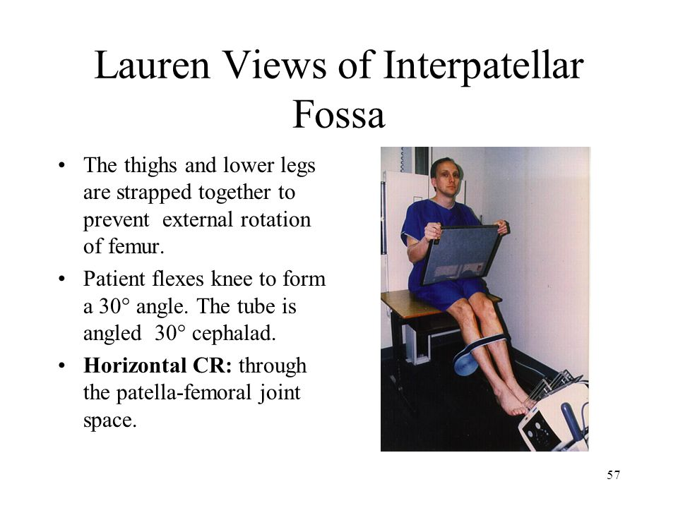 57 Lauren Views of Interpatellar Fossa The thighs and lower legs are strapped together to prevent external rotation of femur. Patient flexes knee to f