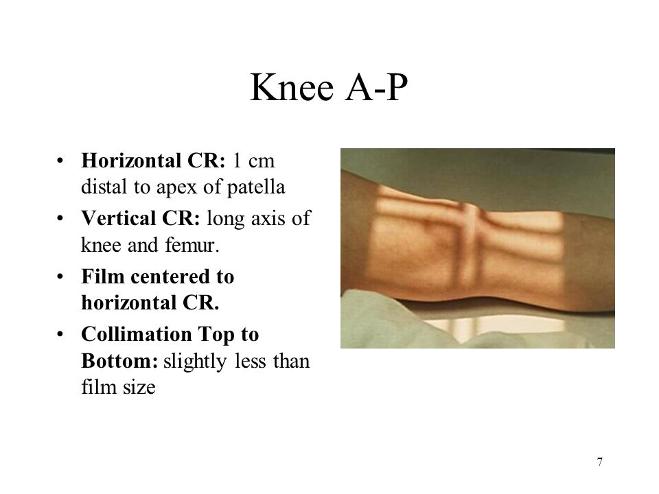 7 Knee A-P Horizontal CR: 1 cm distal to apex of patella Vertical CR: long axis of knee and femur. Film centered to horizontal CR. Collimation Top to