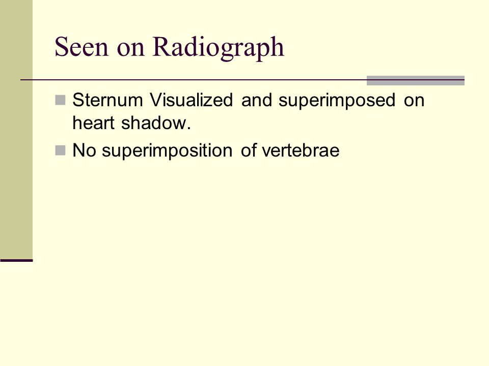 Seen on Radiograph Sternum Visualized and superimposed on heart shadow.