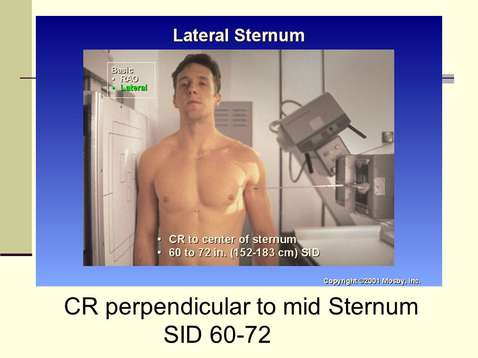 CR perpendicular to mid Sternum SID 60-72