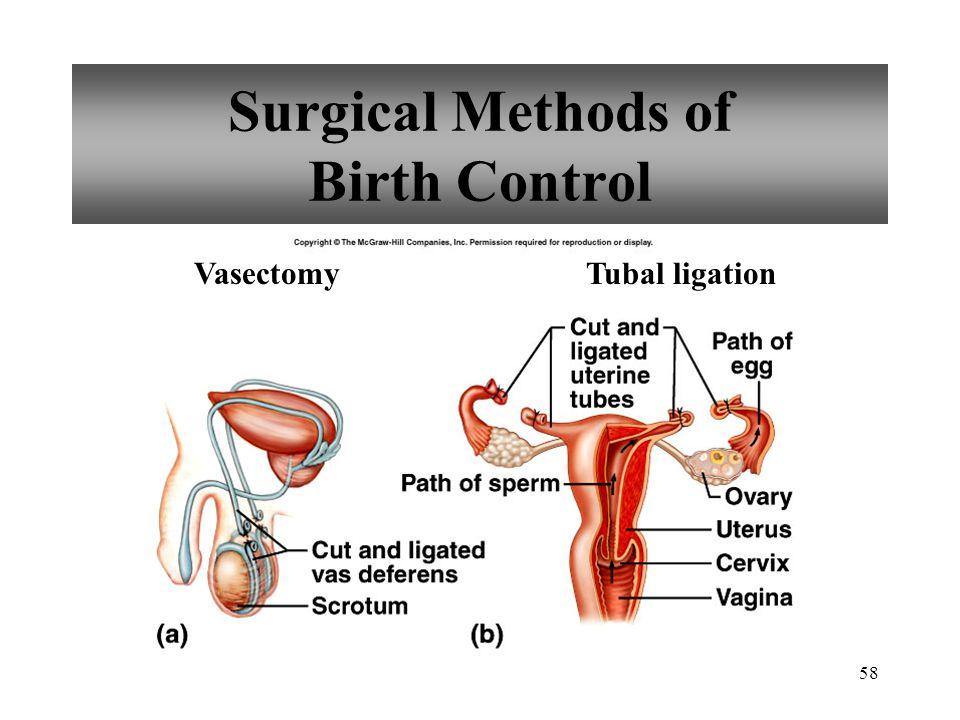 58 Surgical Methods of Birth Control VasectomyTubal ligation