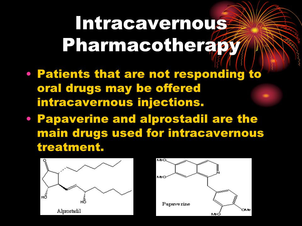 Intracavernous Pharmacotherapy Patients that are not responding to oral drugs may be offered intracavernous injections.