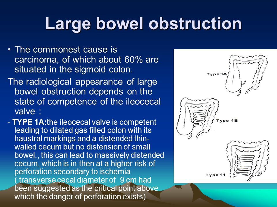 Large bowel obstruction The commonest cause is carcinoma, of which about 60% are situated in the sigmoid colon. The radiological appearance of large b