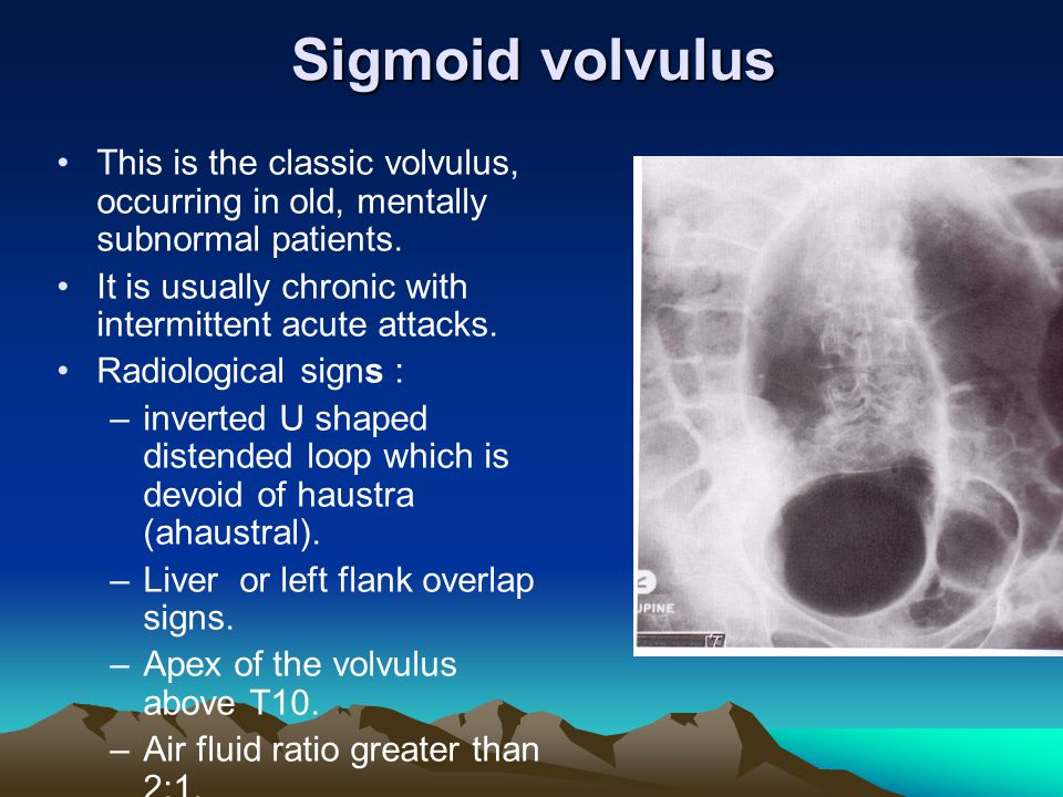 Sigmoid volvulus This is the classic volvulus, occurring in old, mentally subnormal patients. It is usually chronic with intermittent acute attacks. R