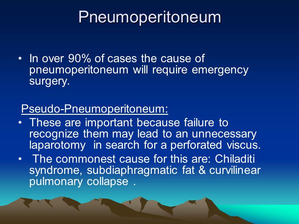 Pneumoperitoneum In over 90% of cases the cause of pneumoperitoneum will require emergency surgery. Pseudo-Pneumoperitoneum: These are important becau