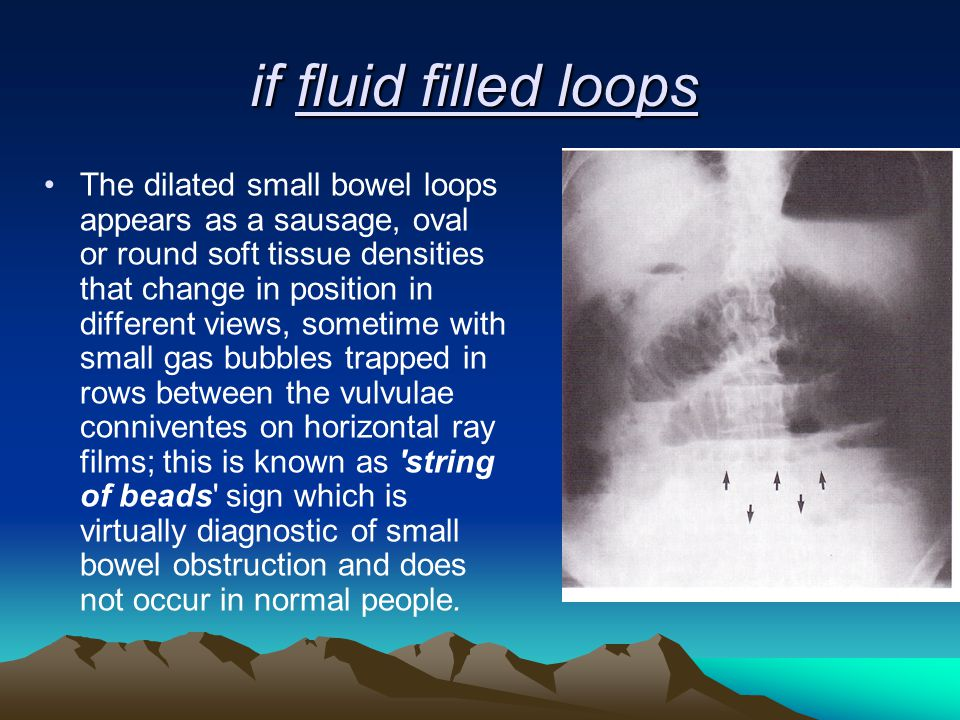 if fluid filled loops The dilated small bowel loops appears as a sausage, oval or round soft tissue densities that change in position in different vie