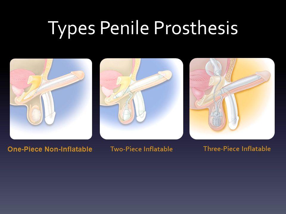 Types Penile Prosthesis One-Piece Non-Inflatable Two-Piece Inflatable Three-Piece Inflatable