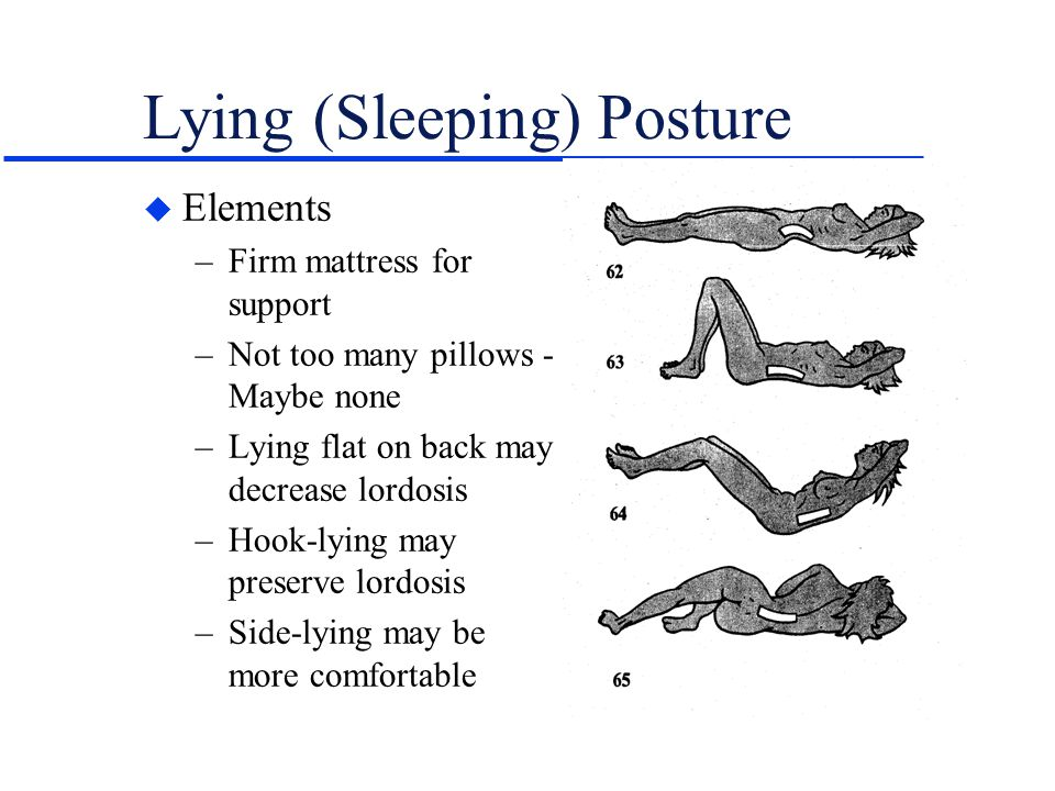 Lying (Sleeping) Posture u Elements –Firm mattress for support –Not too many pillows - Maybe none –Lying flat on back may decrease lordosis –Hook-lyin