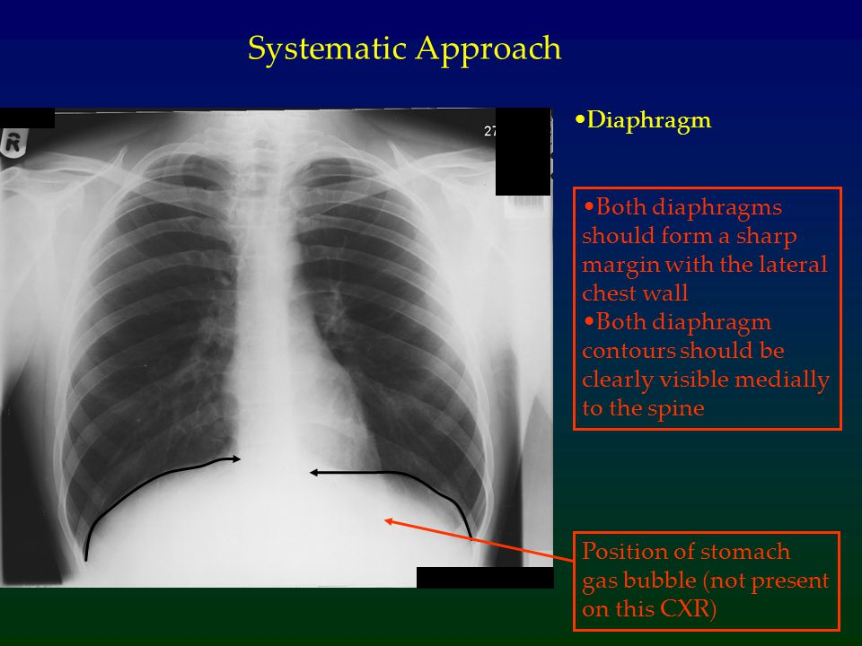Diaphragm Systematic Approach Both diaphragms should form a sharp margin with the lateral chest wall Both diaphragm contours should be clearly visible