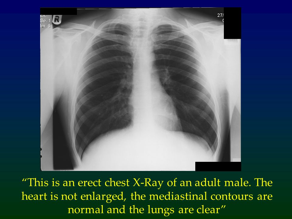 """This is an erect chest X-Ray of an adult male. The heart is not enlarged, the mediastinal contours are normal and the lungs are clear"""