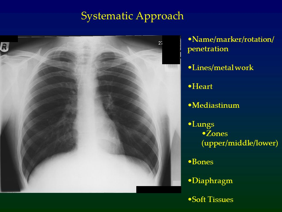 Name/marker/rotation/ penetration Lines/metal work Heart Mediastinum Lungs Zones (upper/middle/lower) Bones Diaphragm Soft Tissues Systematic Approach