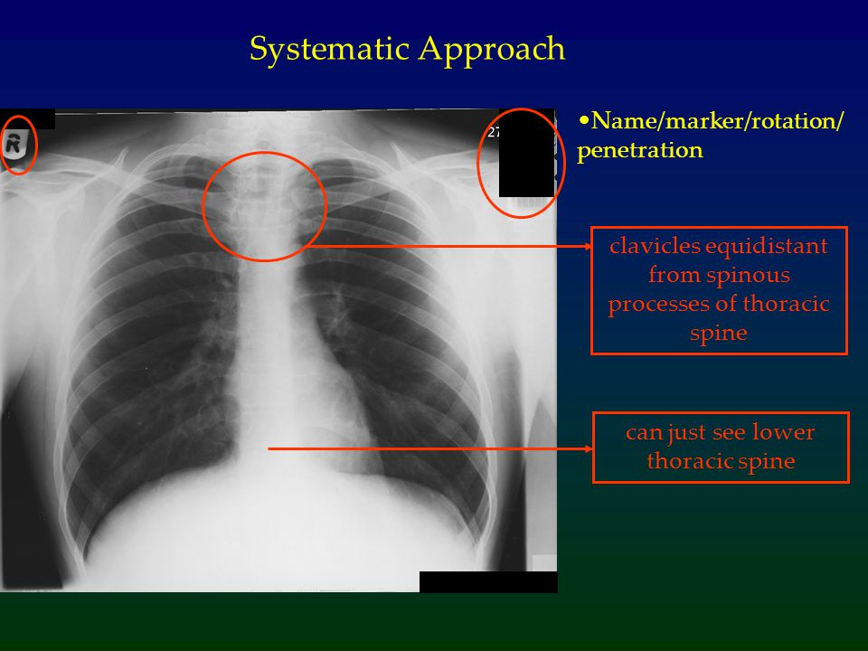 Lines/metal work Systematic Approach Look for: Sternal wires (implies previous thoracic surgery) Tip of endotracheal tube (2cm above carina)