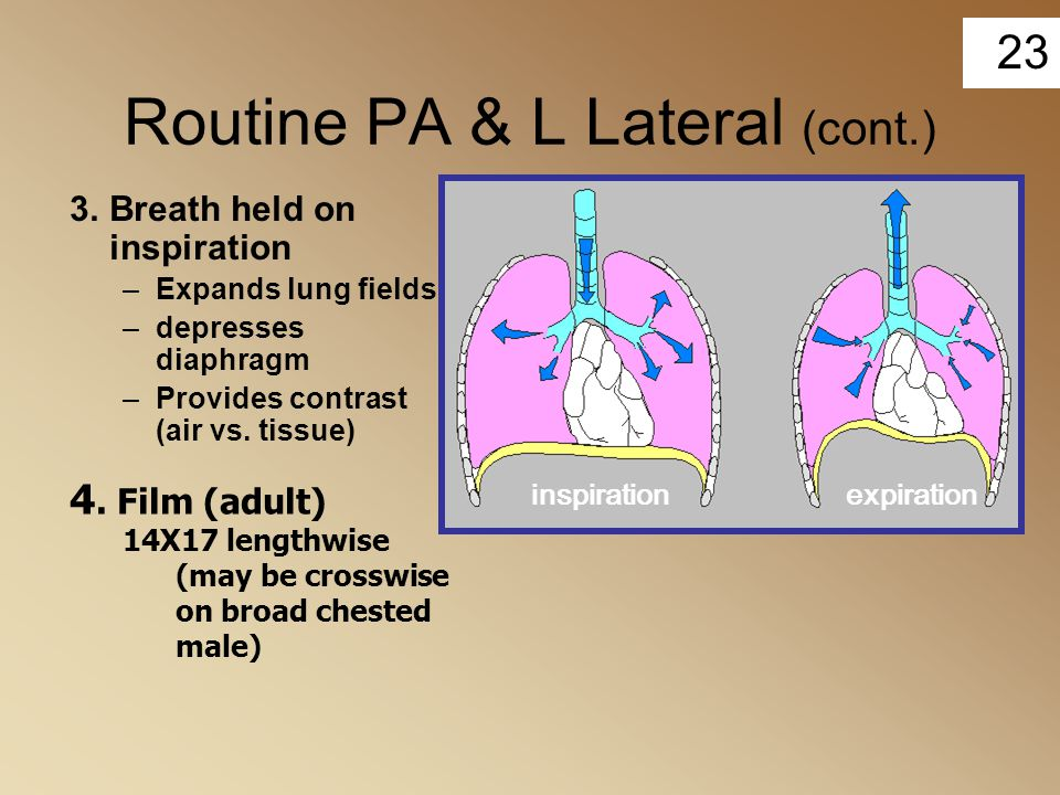 23 Routine PA & L Lateral (cont.) 3.Breath held on inspiration –Expands lung fields –depresses diaphragm –Provides contrast (air vs. tissue) 4. Film (