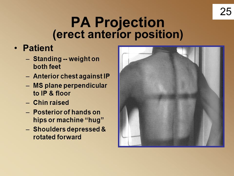25 PA Projection (erect anterior position) Patient –Standing -- weight on both feet –Anterior chest against IP –MS plane perpendicular to IP & floor –