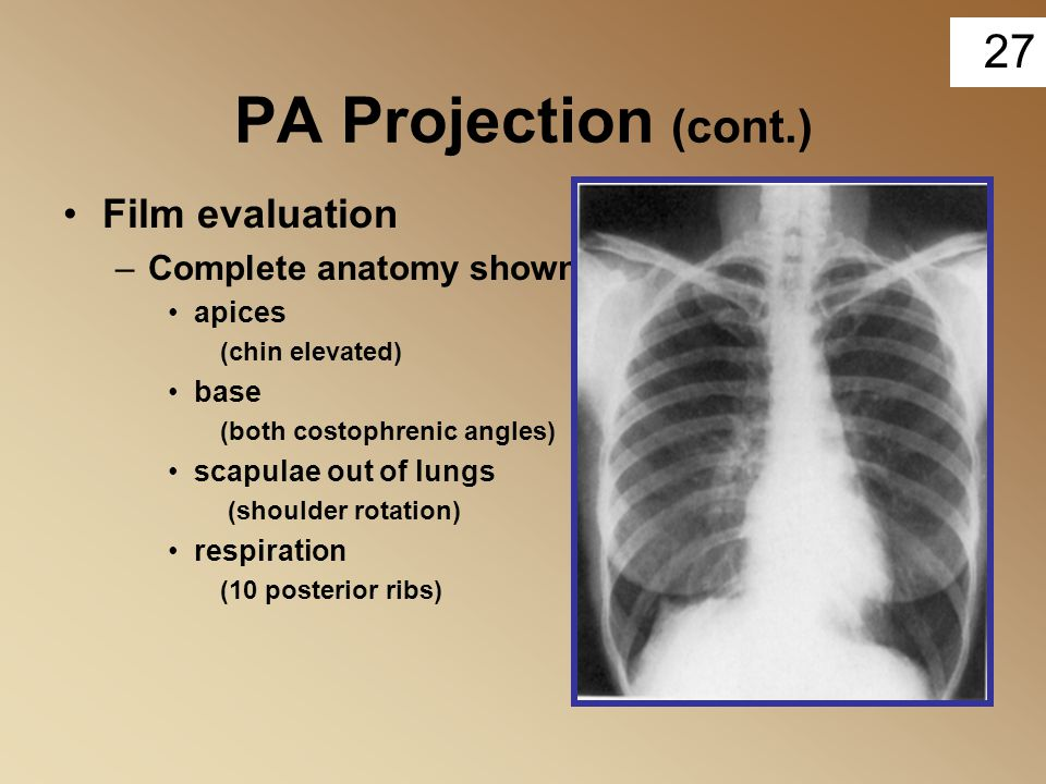 27 PA Projection (cont.) Film evaluation –Complete anatomy shown apices (chin elevated) base (both costophrenic angles) scapulae out of lungs (shoulde