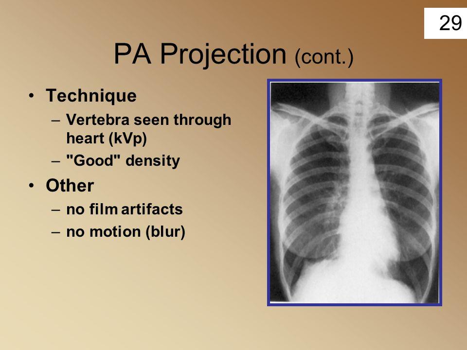 29 PA Projection (cont.) Technique –Vertebra seen through heart (kVp) –