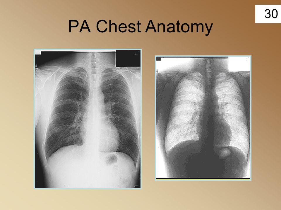 30 PA Chest Anatomy