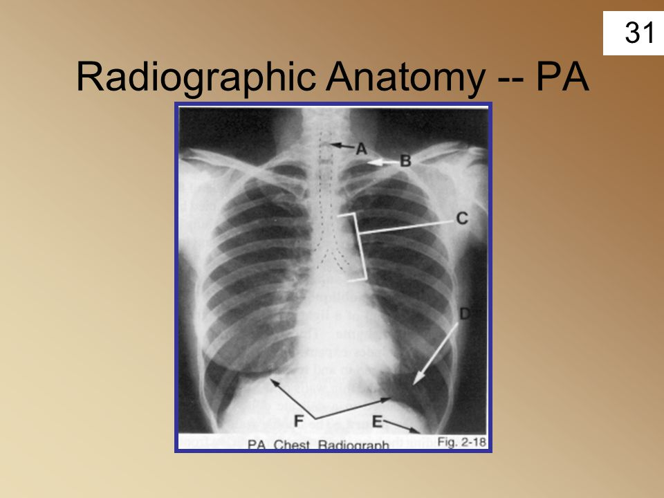 31 Radiographic Anatomy -- PA
