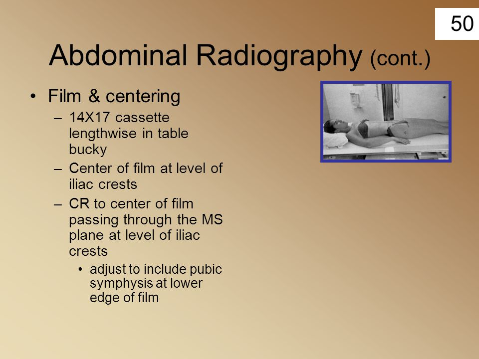 50 Abdominal Radiography (cont.) Film & centering –14X17 cassette lengthwise in table bucky –Center of film at level of iliac crests –CR to center of