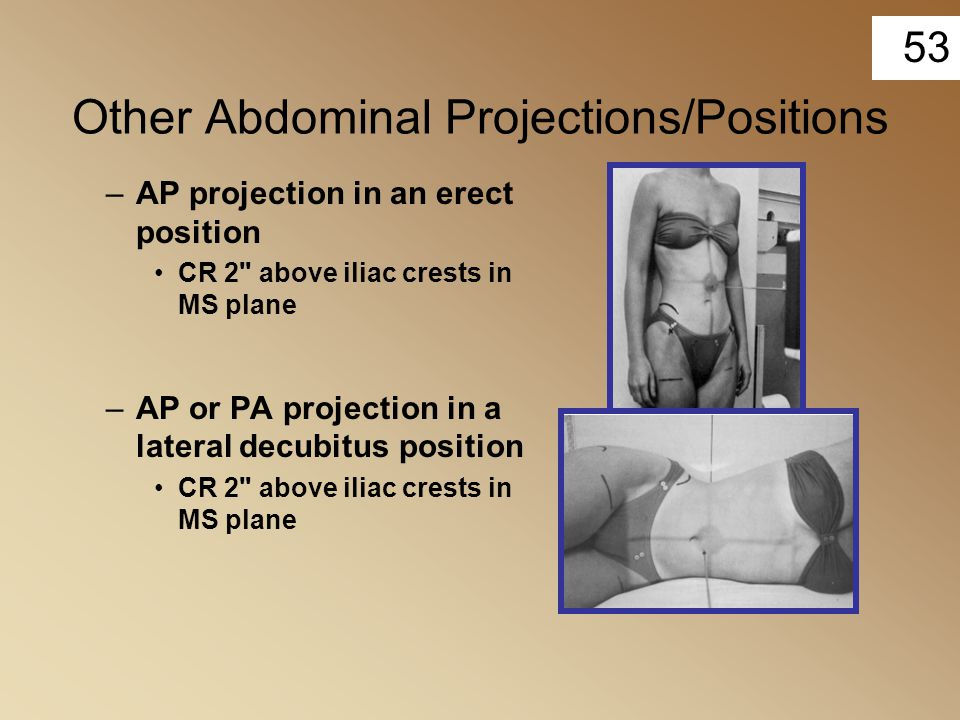 53 Other Abdominal Projections/Positions –AP projection in an erect position CR 2