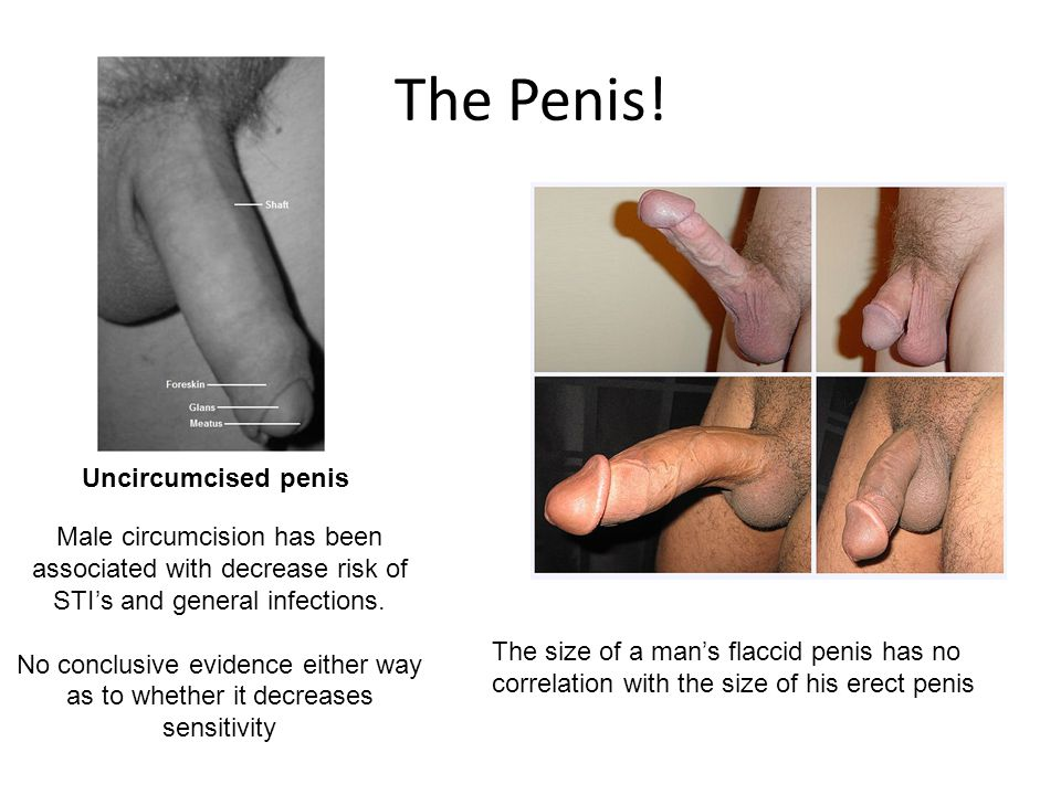 The Penis! The size of a man's flaccid penis has no correlation with the size of his erect penis Uncircumcised penis Male circumcision has been associ