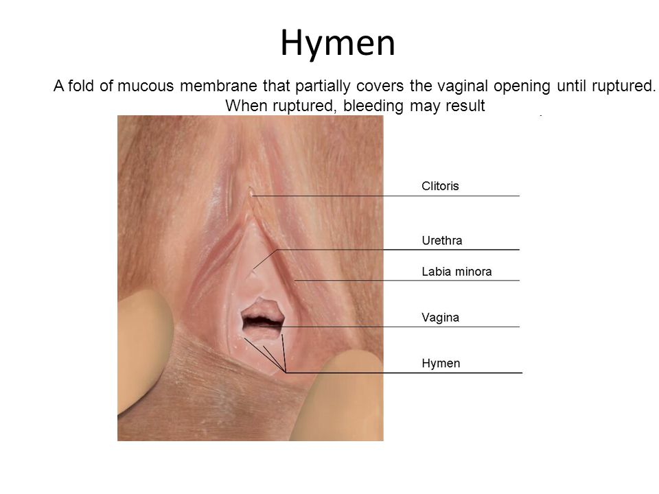 Hymen A fold of mucous membrane that partially covers the vaginal opening until ruptured.