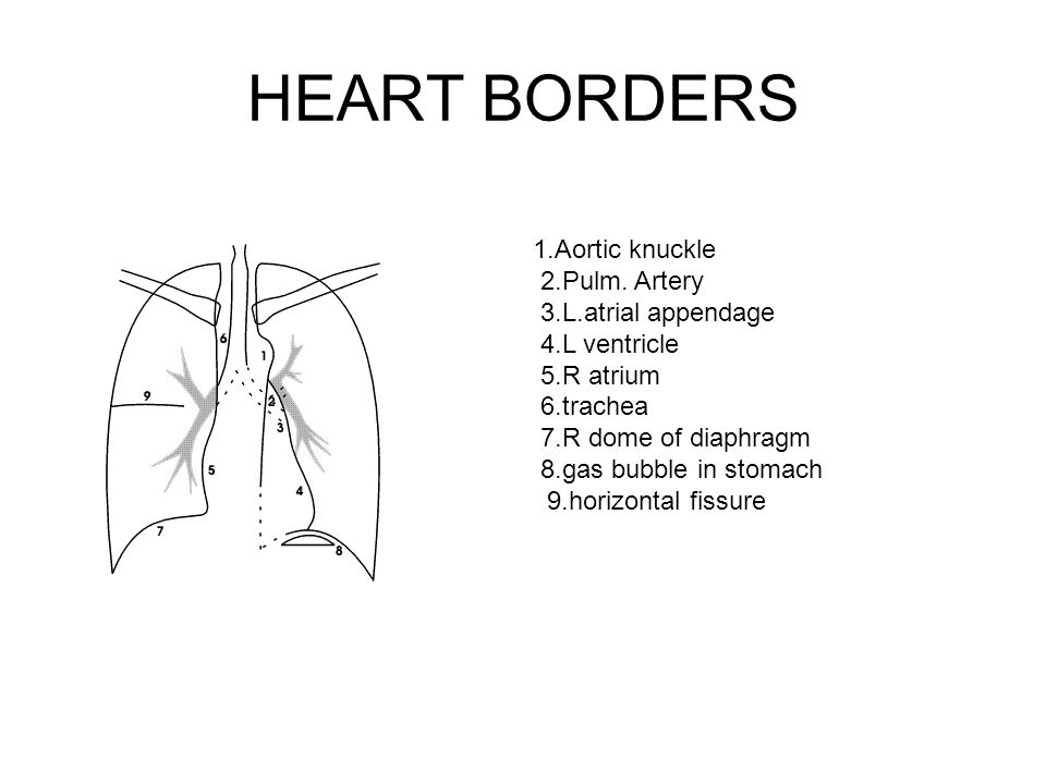 HEART BORDERS 1.Aortic knuckle 2.Pulm. Artery 3.L.atrial appendage 4.L ventricle 5.R atrium 6.trachea 7.R dome of diaphragm 8.gas bubble in stomach 9.