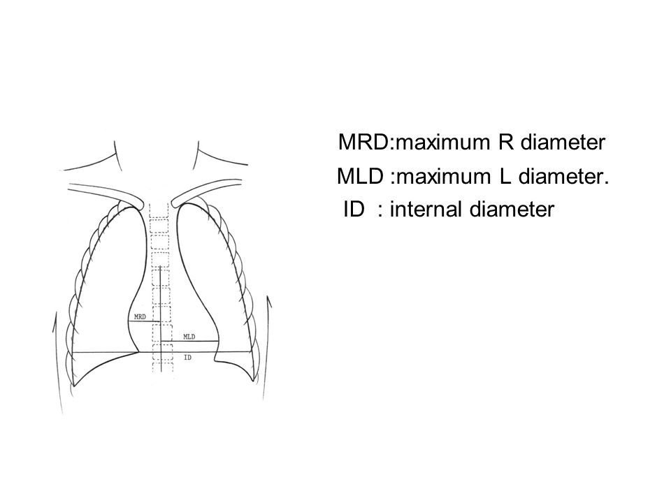 CT ratio MRD:maximum R diameter MLD :maximum L diameter. ID : internal diameter