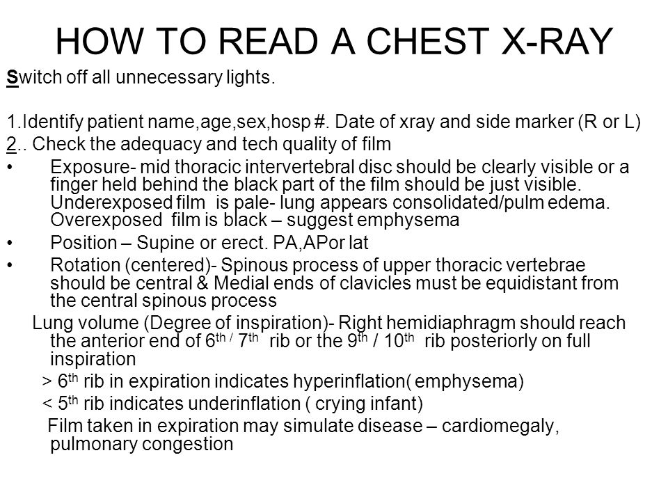 HOW TO READ A CHEST X-RAY Switch off all unnecessary lights. 1.Identify patient name,age,sex,hosp #. Date of xray and side marker (R or L)‏ 2.. Check