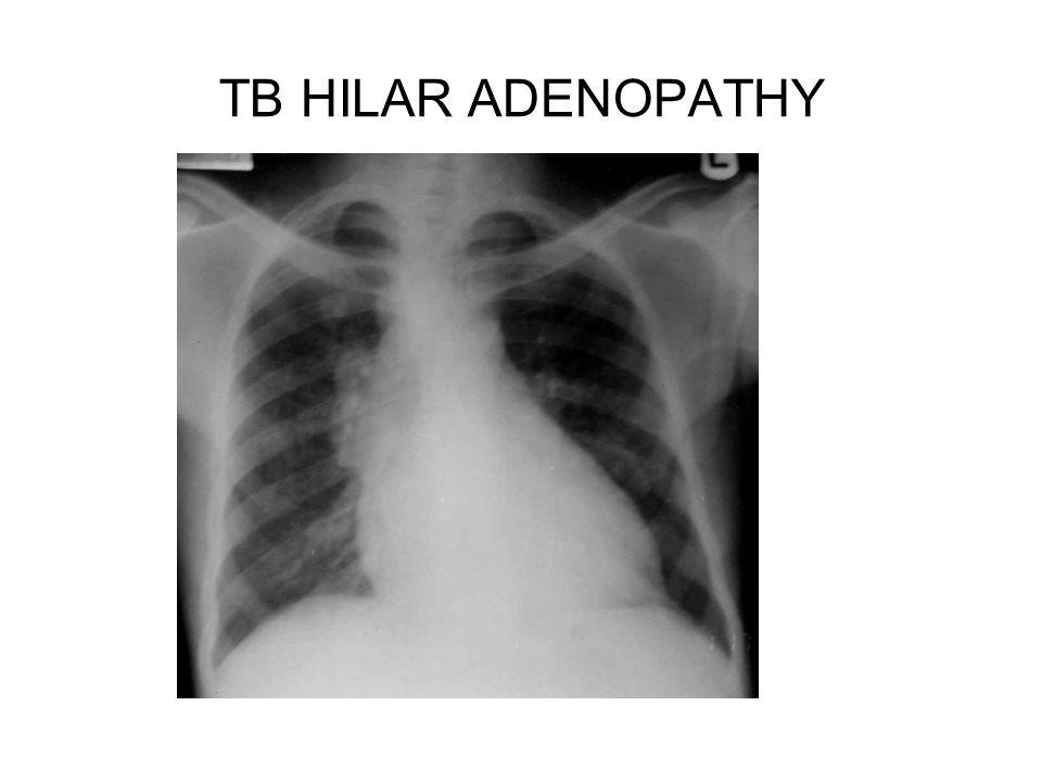 TB HILAR ADENOPATHY