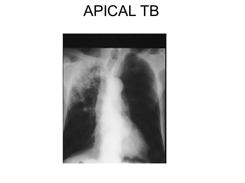 APICAL TB