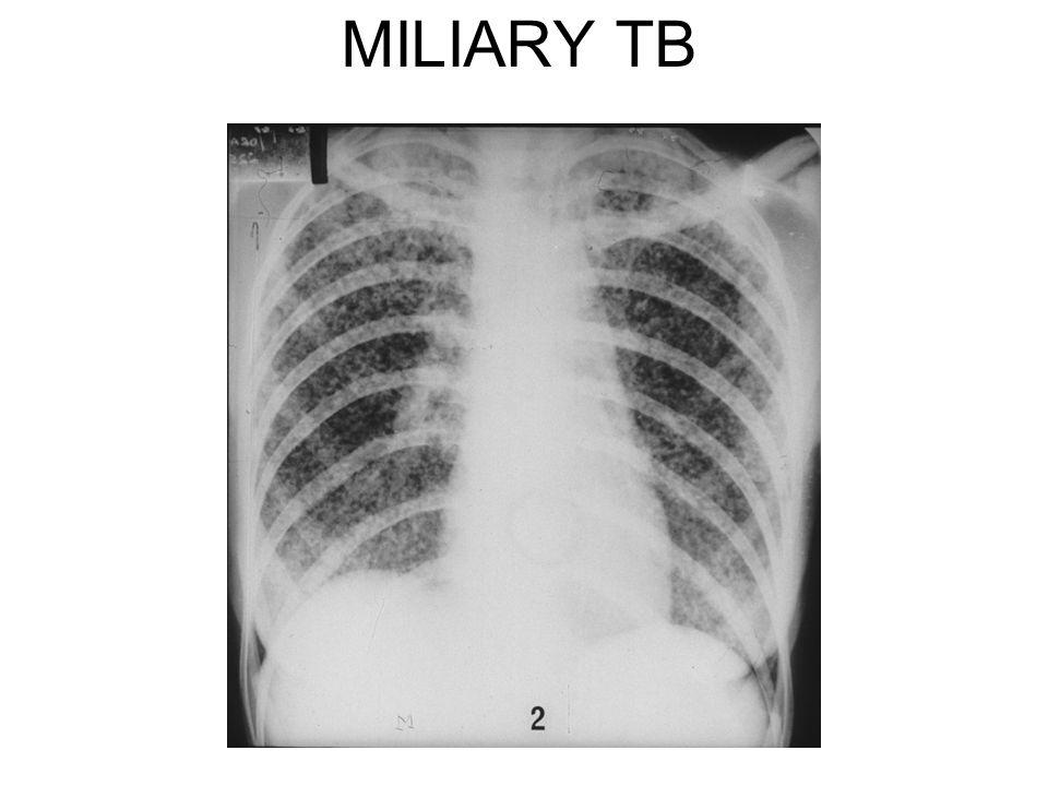 MILIARY TB