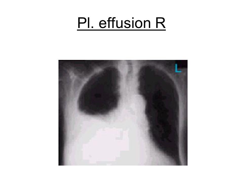 Pl. effusion R