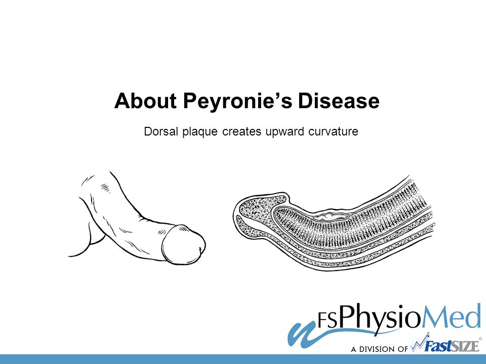 About Peyronie's Disease Dorsal plaque creates upward curvature