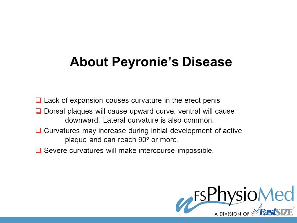 About Peyronie's Disease  Lack of expansion causes curvature in the erect penis  Dorsal plaques will cause upward curve, ventral will cause downward.