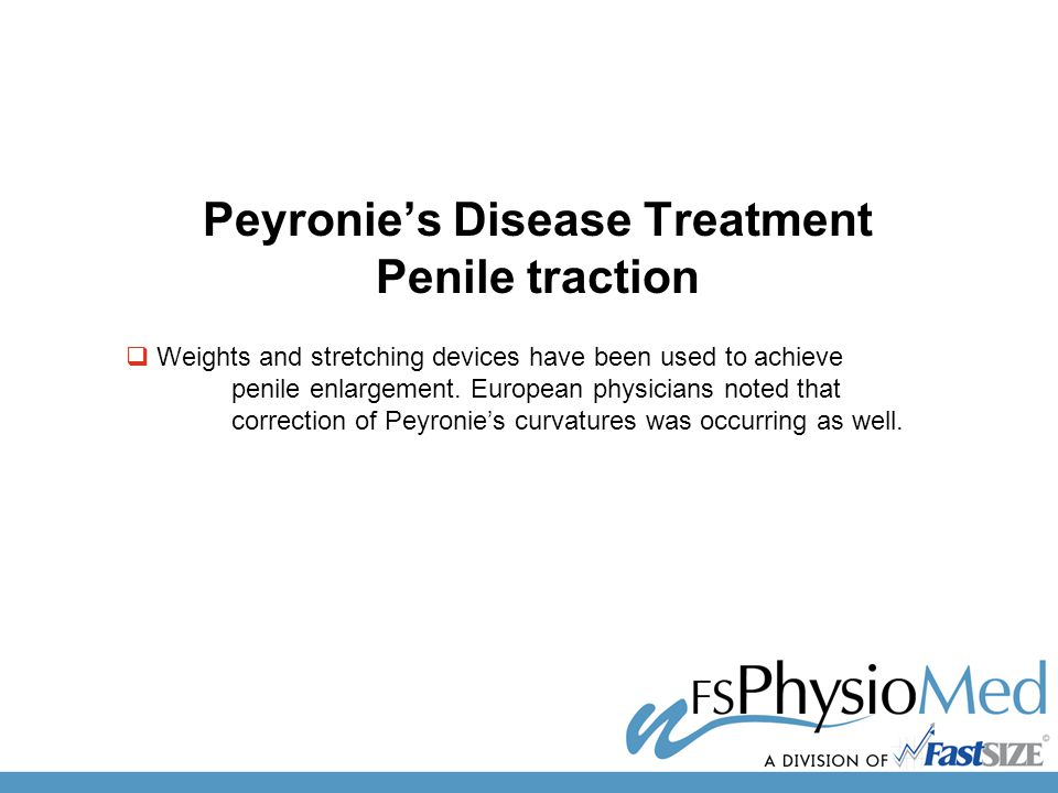 Peyronie's Disease Treatment Penile traction  Weights and stretching devices have been used to achieve penile enlargement.