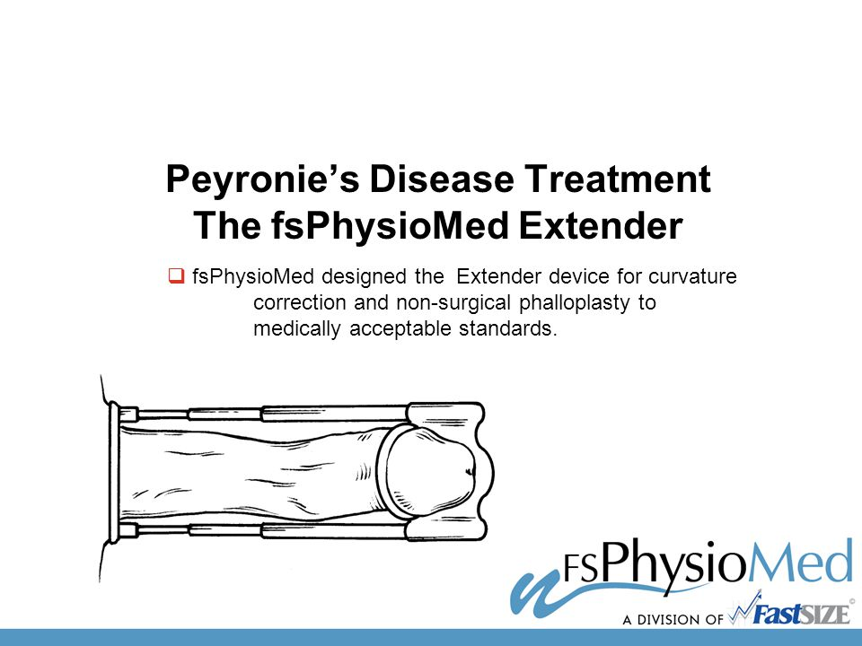 Peyronie's Disease Treatment The fsPhysioMed Extender  fsPhysioMed designed the Extender device for curvature correction and non-surgical phalloplasty to medically acceptable standards.